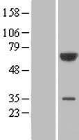 NBL1-14340 - PGM3 Lysate