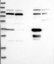 NBP1-87892 - Prostaglandin reductase 1
