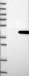 NBP1-87893 - Prostaglandin reductase 1