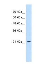 NBP1-59827 - PGRMC1