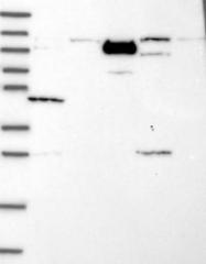 NBP1-84896 - PHC3 / EDR3 / PH3