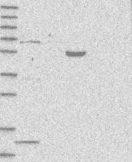 NBP1-82613 - PHF1