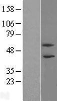 NBL1-14358 - PHF21B Lysate