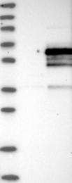 NBP1-92263 - INTS12 / PHF22