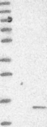 NBP1-88591 - PHF5A