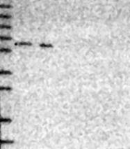 NBP1-83079 - PHF8 / ZNF422