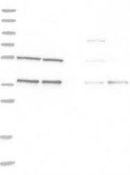 NBP1-87310 - PHGDH