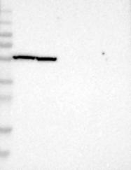 NBP1-87311 - PHGDH