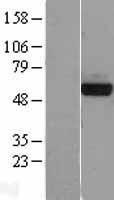 NBL1-14363 - PHGDH Lysate