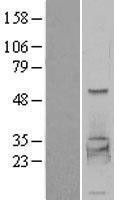 NBL1-14366 - PHKG2 Lysate