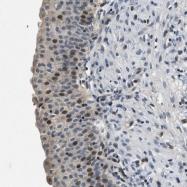 NBP1-84969 - TDAG51 / PHLDA1