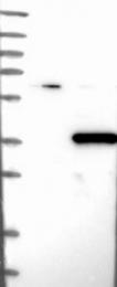 NBP1-81187 - PHYHD1