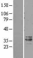 NBL1-14375 - PHYHD1 Lysate