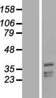 NBL1-14376 - PHYHIP Lysate