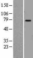 NBL1-14384 - PIAS1 Lysate