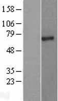 NBL1-14385 - PIAS2 Lysate