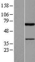 NBL1-14386 - PIAS2 Lysate
