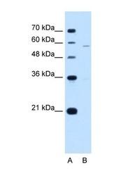 NBP1-62449 - PIGV