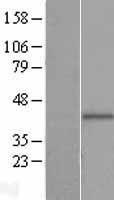 NBL1-14413 - PIH1D2 Lysate