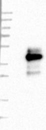 NBP1-83263 - PIK3IP1