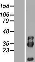 NBL1-14419 - PIK3IP1 Lysate