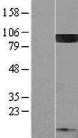 NBL1-14436 - PIP5K1C Lysate