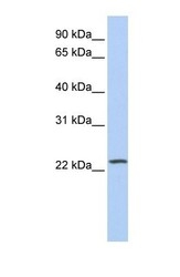 NBP1-52922 - PIP5KL1