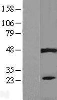 NBL1-14437 - PIP5KL1 Lysate