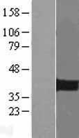 NBL1-14446 - PITX2 Lysate