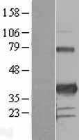 NBL1-14449 - PITX3 Lysate