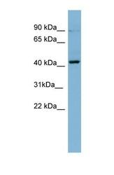 NBP1-58915 - PRKCB