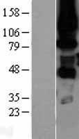 NBL1-14776 - PKC eta Lysate