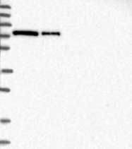 NBP1-84959 - PRKCI