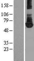 NBL1-14462 - PKM2 Lysate