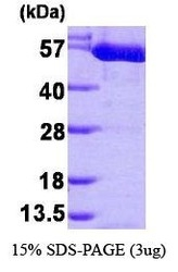 NBP1-30292 - PKM2
