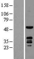 NBL1-14465 - PKNOX1 Lysate