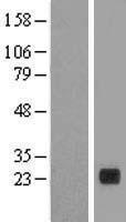 NBL1-14470 - PLA2G12B Lysate