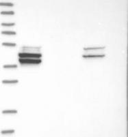 NBP1-81317 - PLA2G7