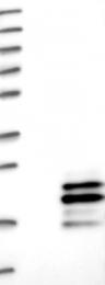 NBP1-83488 - PLAC1L