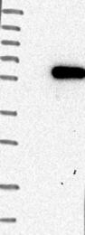 NBP1-80584 - PLAGL2