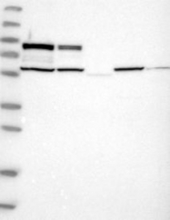 NBP1-85969 - PLCD3