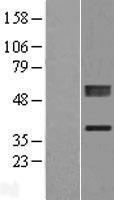 NBL1-14493 - PLCXD1 Lysate