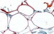 NBP1-06072 - Perilipin-4