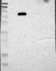 NBP1-81307 - PLOD3