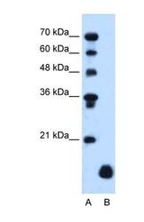 NBP1-62539 - PLP2 / A4
