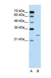 NBP1-58979 - PLUNC