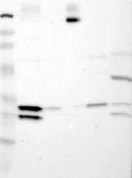 NBP1-87259 - ATP2B3 / PMCA3