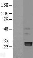 NBL1-14541 - PMVK Lysate