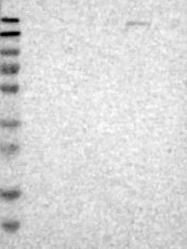 NBP1-88348 - PNKD