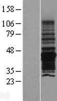 NBL1-14548 - PNMA6A Lysate